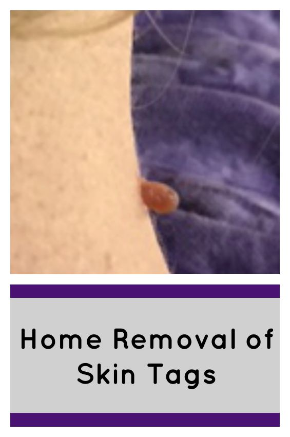 Home-Removal-of-Skin-Tags-DIY